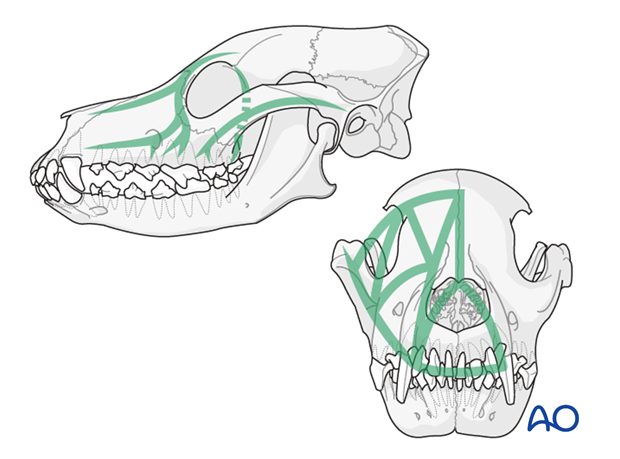 general considerations with midface fractures