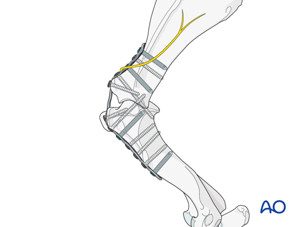 scapulohumeral joint degenerative joint disease