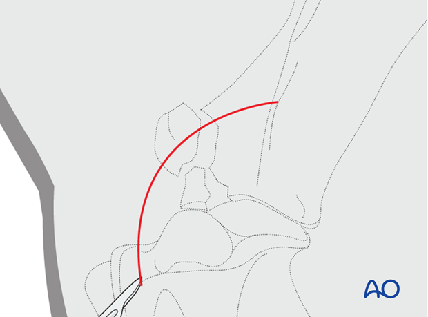 long craniolateral approach to the shoulder