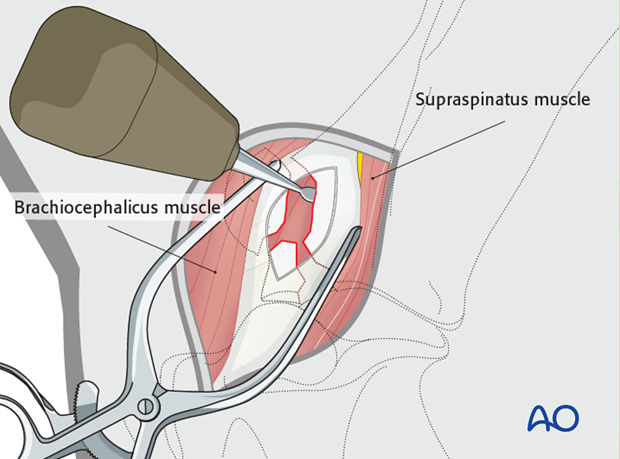 craniolateral approach to the shoulder