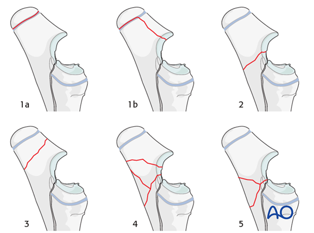 Ulnar fractures introduction