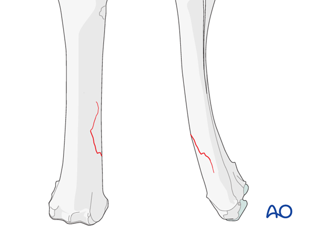 Radial fractures introduction