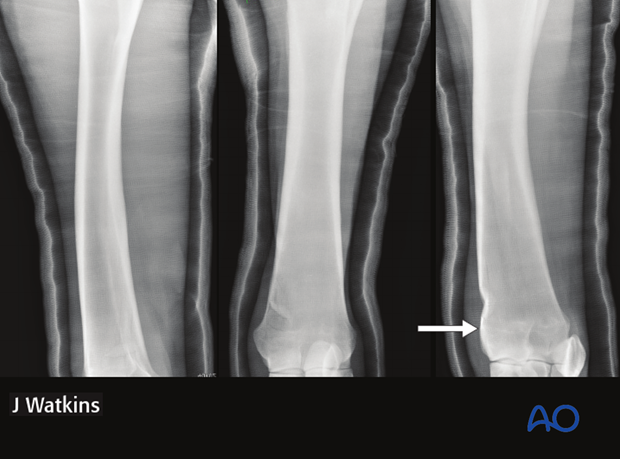 nonsurgical fracture management