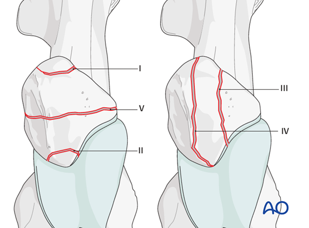 etiology and fracture classification