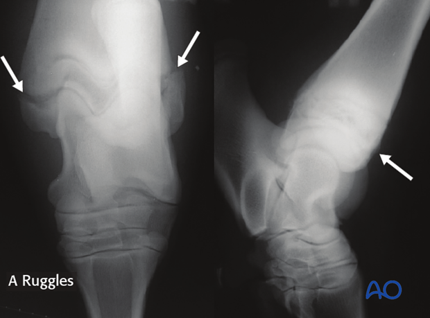 Radiographs of SH-I fracture of the distal