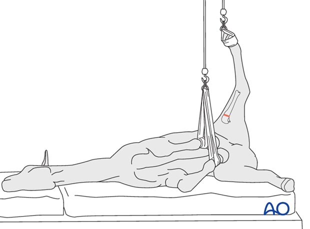 lateral recumbency