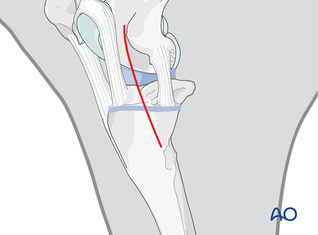 approach to proximal tibia