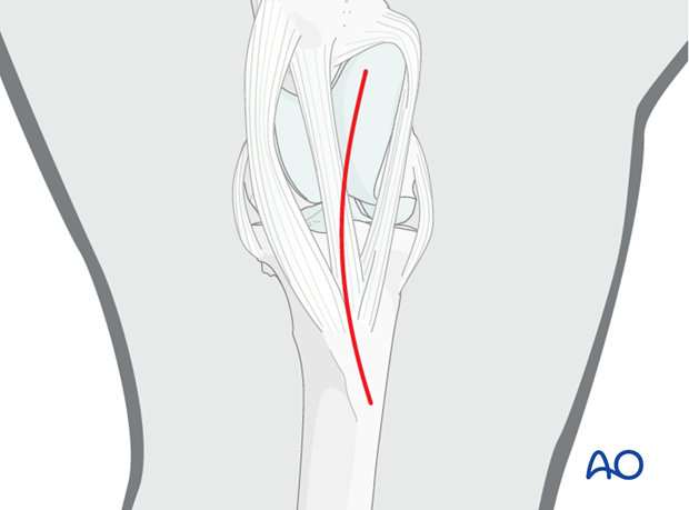 approach to tibial crest