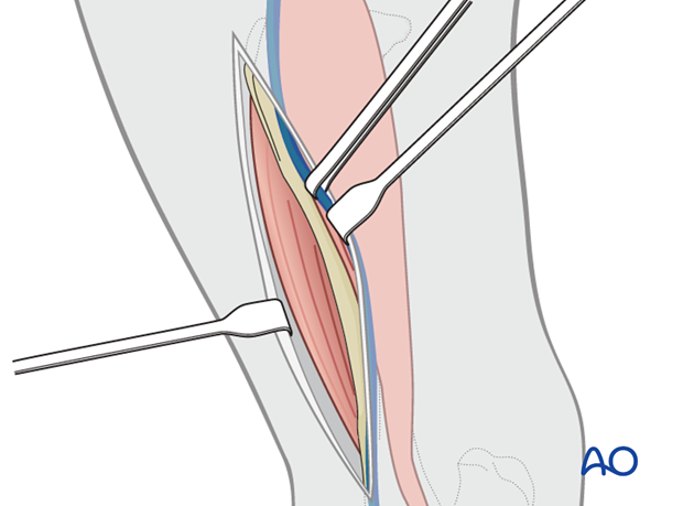 medial approach to tibial shaft