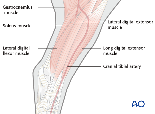 cranial approach to tibial shaft