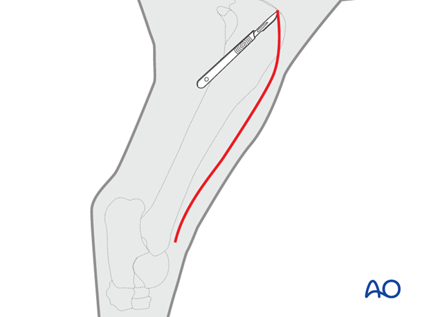 lateral approach to tibial shaft