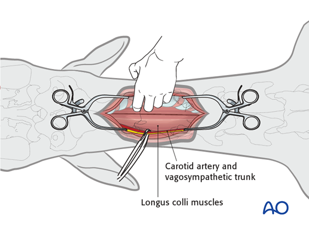 ventral midline approach to the cervical spine