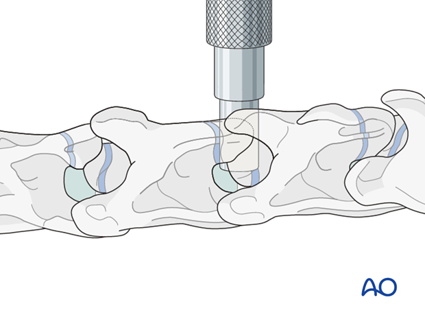 arthrodesis with kerf cut cylinder