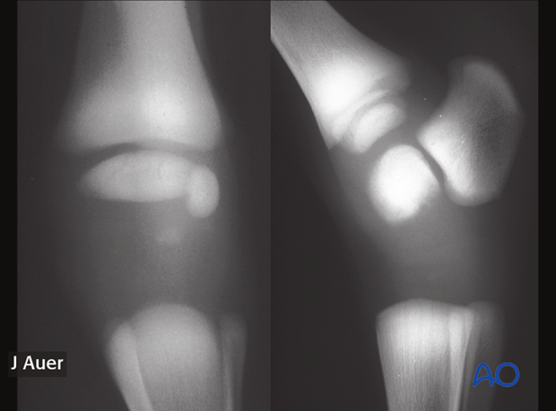 Dorsopalmar radiographic view of the carpus and lateromedial radiographic view of the tarsus of the smaller twin foal shown above. The cuboidal carpal and tarsal bones have not started to ossify.