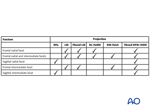Table 1: Recognition of Carpal Bone Fractures on the different Radiographic Projections