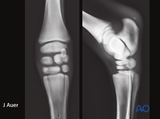 proximal phalanx angular limb deformities
