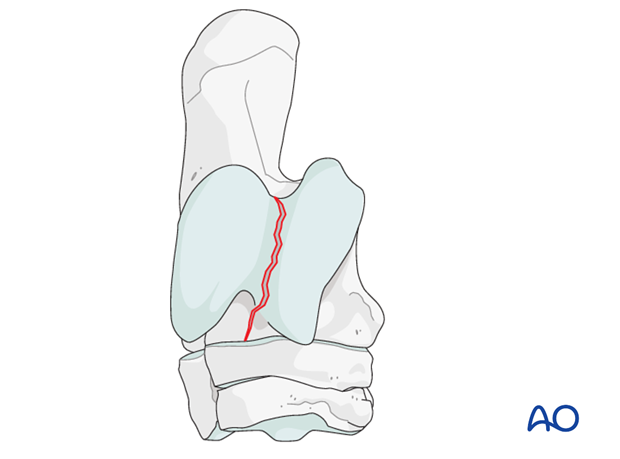 Sagittal fractures of the talus