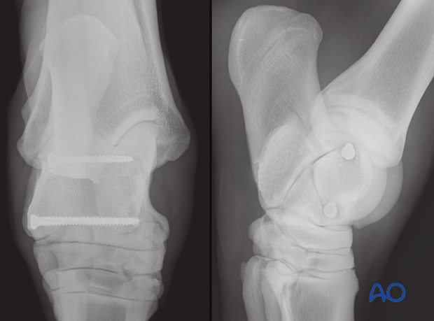 Complete sagittal fractures of the talus - screw fixation