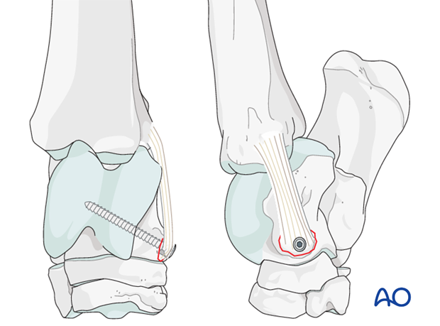 Calcaneus– Fracture of the attachment of the collateral ligament - screw fixation
