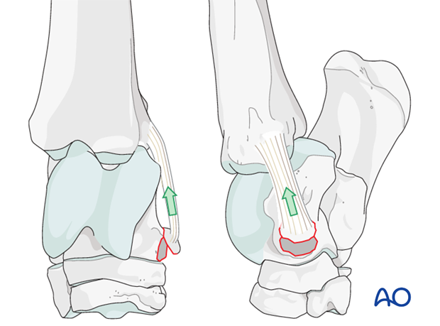 Fractures of the attachment of the collateral ligaments of the talus