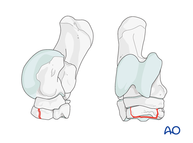 Fractures of the third tarsal bone