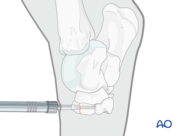 Fractures of the third tarsal bone - screw fixation