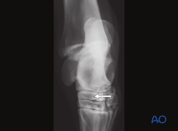 Fractures of the central tarsal bone