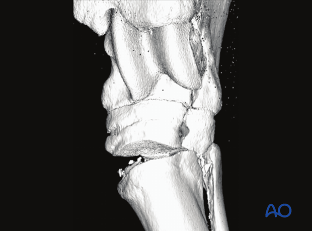 Fractures of the 1st, 2nd and 4th tarsal bones