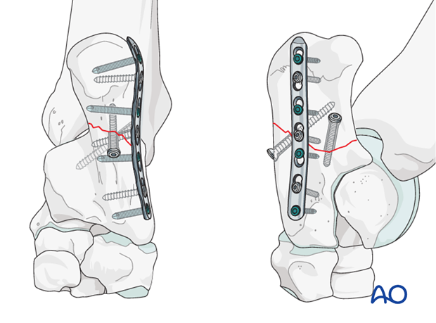 Calcaneus - simple fracture of the shaft - plate fixation