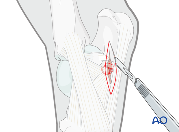 Fractures of the sustentaculum tali - approach