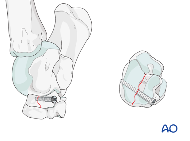 Simple fractures of the central tarsal bone - screw fixation