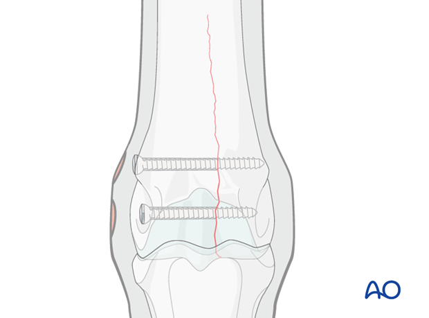 Medial incomplete condylar fracture - plate fixation