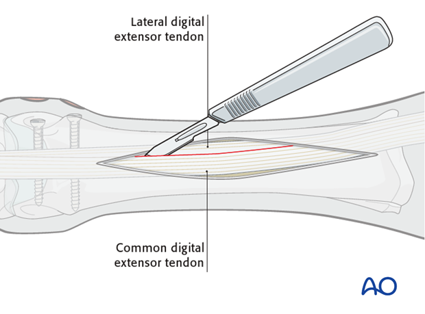 Dorsolateral approach for medial condylar fractures