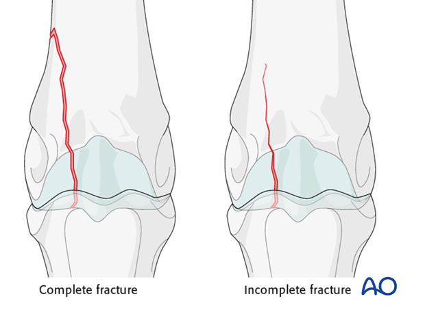 Complete and incomplete lateral condylar fracture