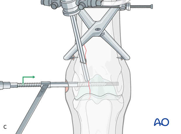 Displaced lateral condylar fracture - screw fixation