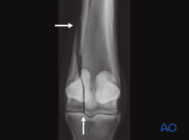 Displaced lateral condylar fracture