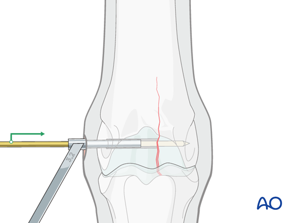 Medial incomplete condylar fracture - screw fixation