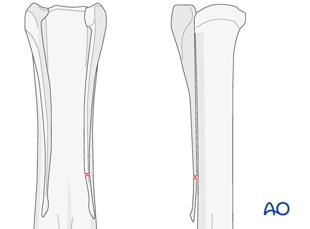 Distal fractures of the metacarpals/-tarsals II and IV
