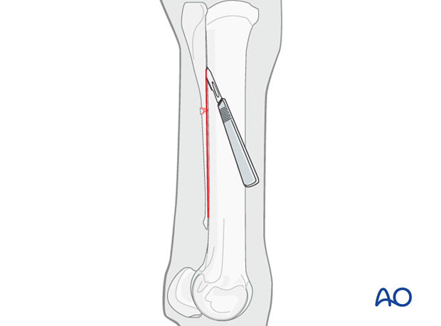 Midbody and distal splint bone fractures - approaches