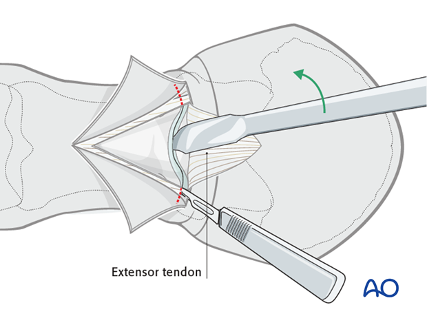 A Hohmann retractor or similar instrument is introduced between the two articular surfaces...