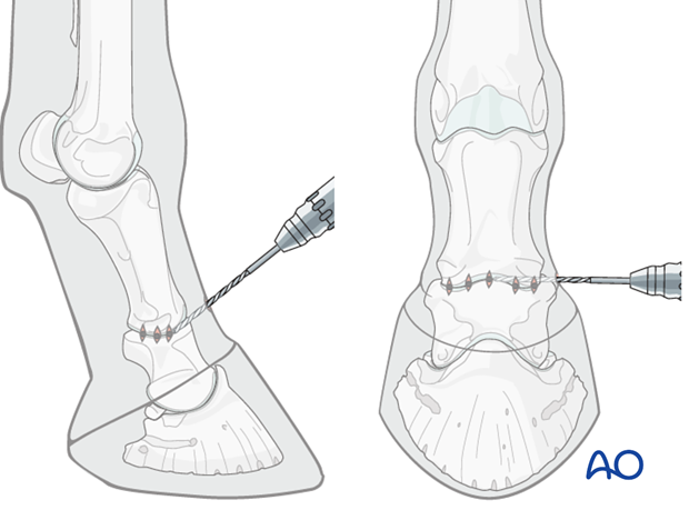 In advanced cases of DJD, dorsal luxation of the pastern joint may be complicated by partial pastern ankylosis,...