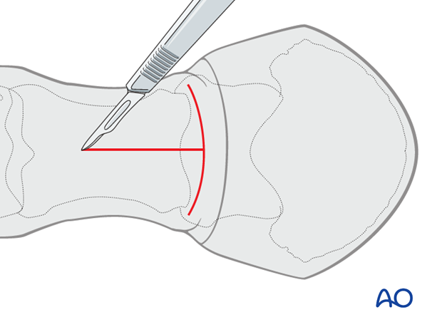 A longitudinal incision is made starting at the junction of the proximal and middle one third of the proximal phalanx...