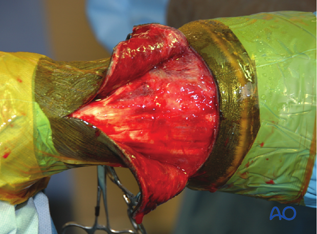 dorsal approach to the proximal interphalangeal pastern joint