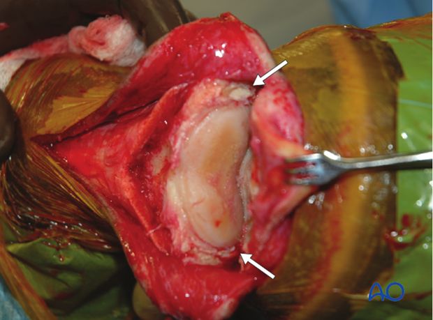 The joint is opened to allow complete removal of the articular cartilage.