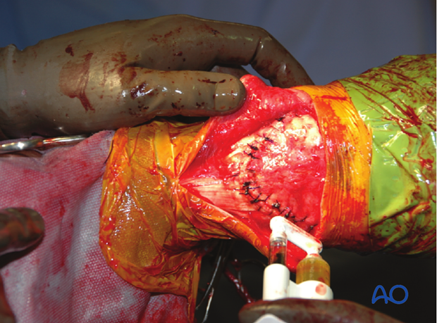The incisions in the tendons are closed using No 1 monofilament sutures.