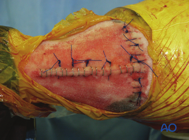 The skin incisions are closed routinely. Tension relieving sutures are applied as needed in the longitudinal incision.