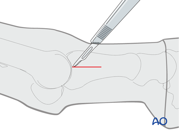 Standard lateral approach