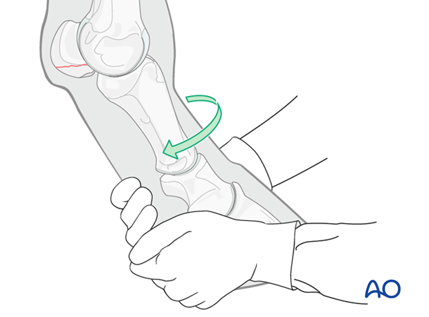 Basilar fracture of the proximal sesamoid bone - screw fixation