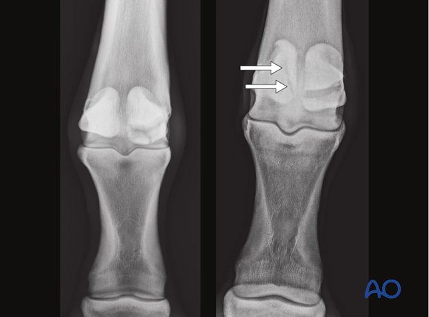 Fractures of proximal sesamoid bones - comminuted fractures