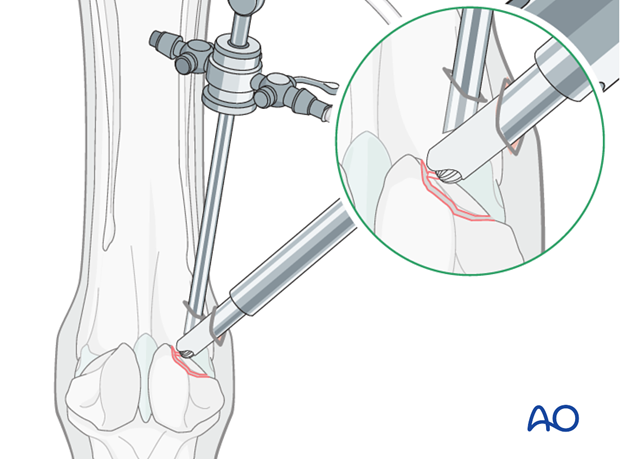 Abaxial fracture of the proximal sesamoid bone - removal